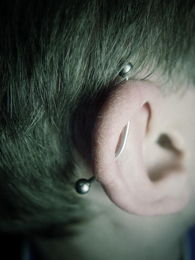 001 oreja bicartilago