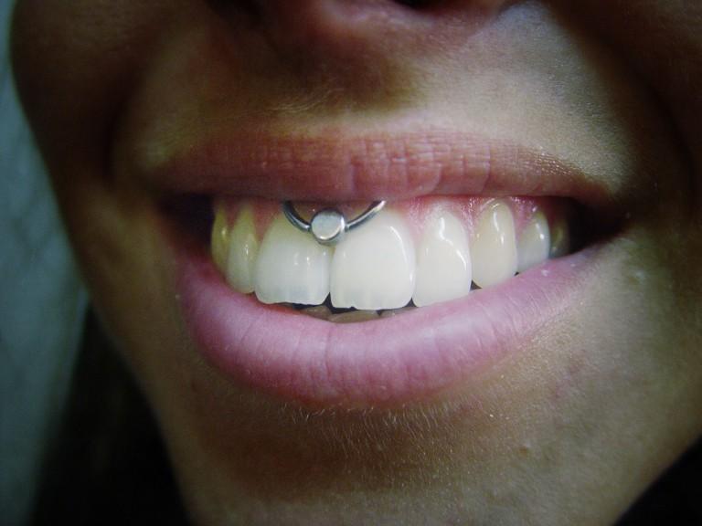 008 facial boca